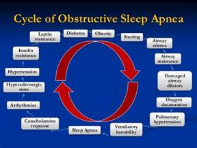 obstructive sleep apnea and anesthesia for vats lung picture 9