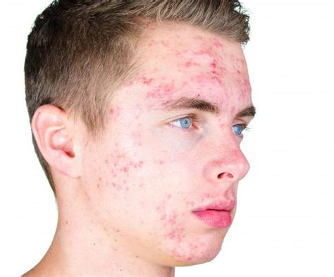 acne scholarships picture 11