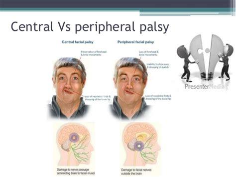 central hypothyroidism picture 1
