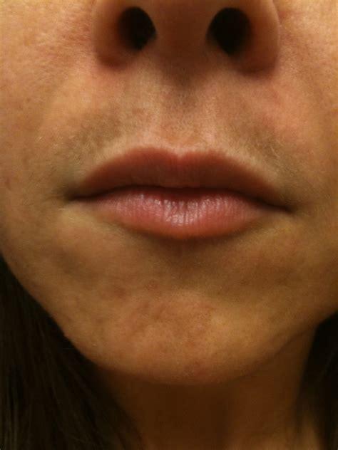 dark skin on upper lip picture 2