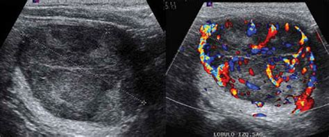 well defined nodule thyroid picture 14