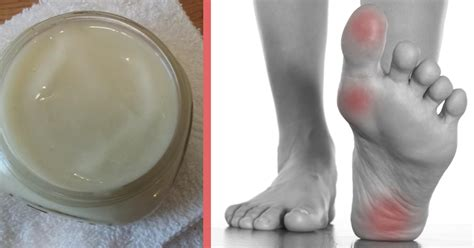 muscle ache joint pain picture 7
