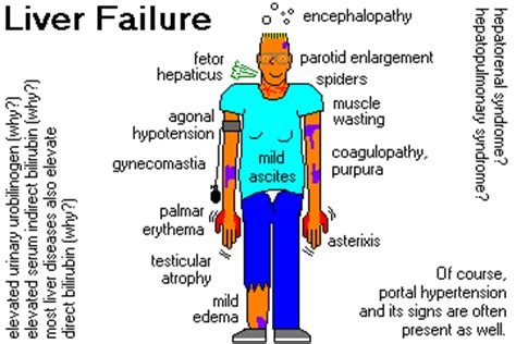 does aids cause liver failure and lose of picture 6
