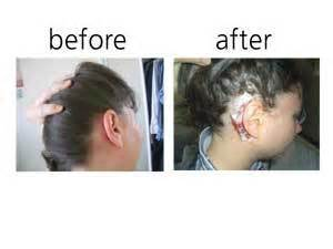 before and after pictures does extamax work picture 2