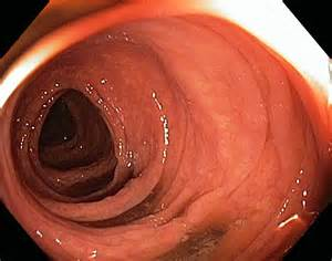 ulcerative colitis in the sigmoid colon picture 1