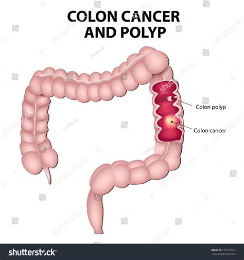 cancer colon espanol picture 3