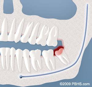 wisdom teeth surgery price picture 19