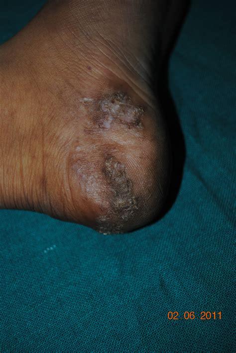 warts lymphocytes picture 17