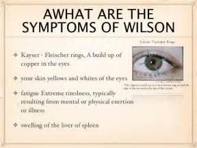 liver problems symptoms picture 13