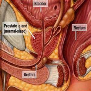 herbal prostatitis treatment picture 3