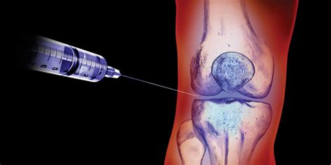 arthritis joint injections picture 10