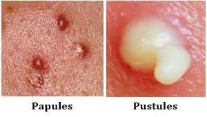 female hormones acne picture 13