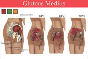 severe pain in left gluteus maximus torn tear picture 5