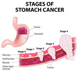 Stomach cramps with prostate cancer picture 6