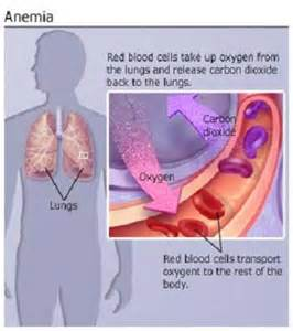 does low thyroid cause anemia picture 2