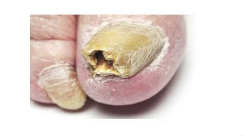 toe nail fungus cure picture 5