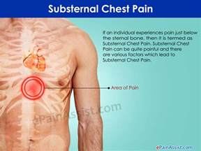 does indigestion cause pain around the chest area picture 9