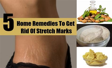 natural stretch mark home remedy picture 9