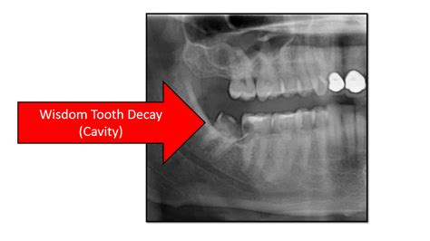 cavities in wisdom teeth picture 13