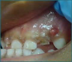 blood inside baby teeth picture 5