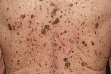 skin warts picture 5
