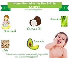 dry skin in children picture 11