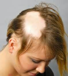 chemotherapy hair loss in women picture 3