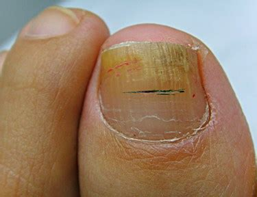 fungus under toe nails picture 1