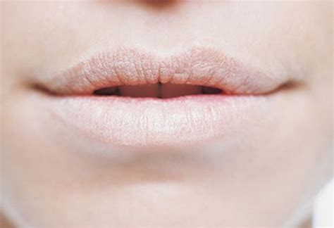 allergic reaction lips picture 5