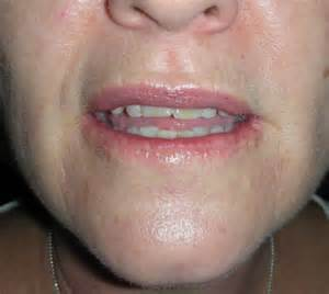 Skin cancer on lips picture 3