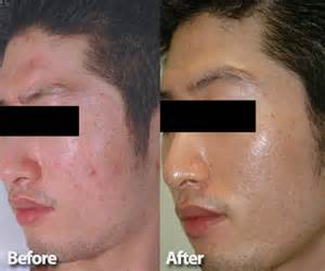 laser for skin treatment picture 6