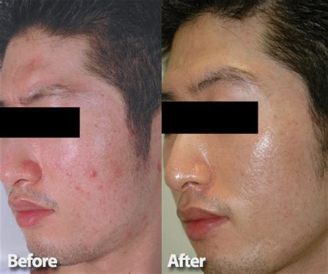 find at less cost the fractional laser for picture 7