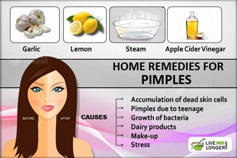 what to use for acne cause by odimune picture 13