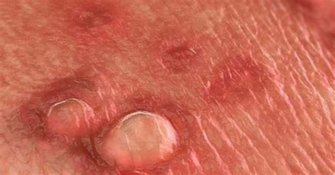 acuminate warts picture 9