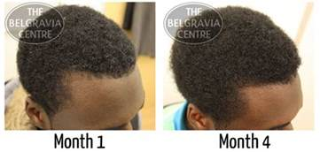 black male hair care picture 3