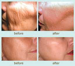 ablative laser acne treatment picture 2