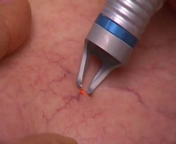 small red spider veins under skin of monis picture 6
