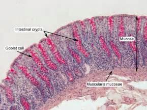 small colon polyp picture 9