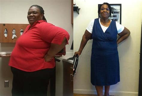 abstracts of weight gain after gastric bypass picture 14