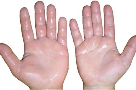 body cleanse swollen fingers picture 13