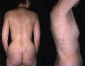 how long to genital warts do acne scars picture 1