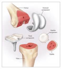 image of hip replacement joint picture 6
