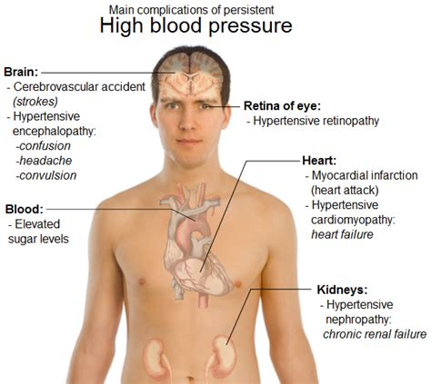 pain and high blood pressure picture 18