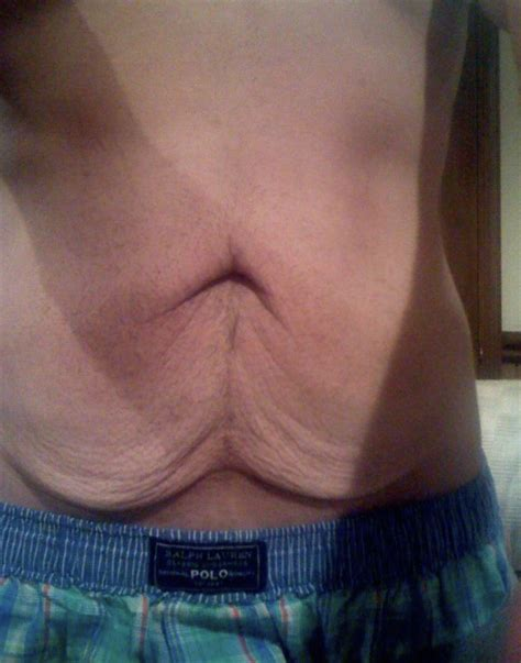 excess skin weight picture 1