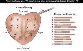 prostatic biopsy picture 9