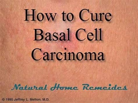 is there a natural cure for basal cell skin cancer picture 4