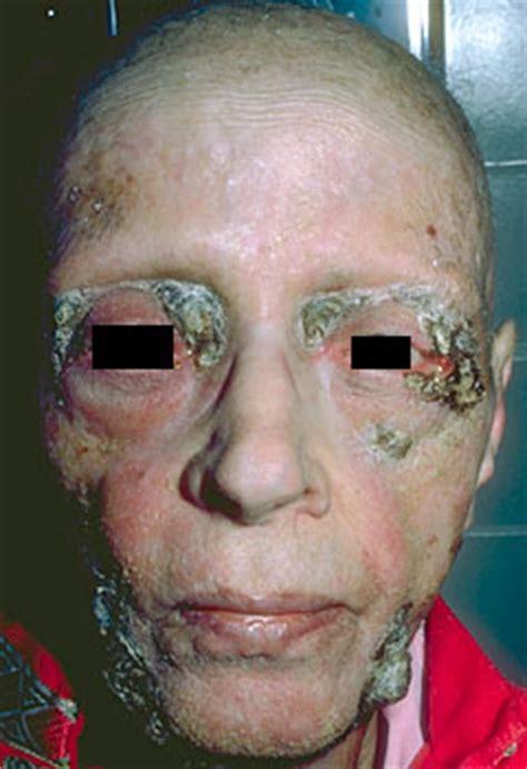 cat lip lesion from advantage picture 15