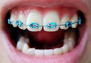colored braces h picture 13
