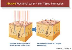 fractil skin procedure picture 3