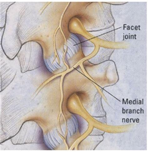 cervical facet joint procedure picture 3